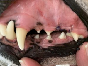 The Same Teeth After Scaling, Polishing, and Removal of Broken Tooth