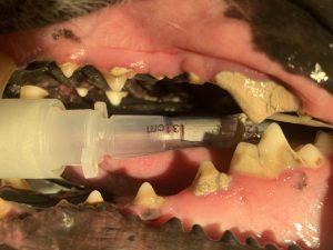 Tartar Accumulation and Broken Tooth Before Dental